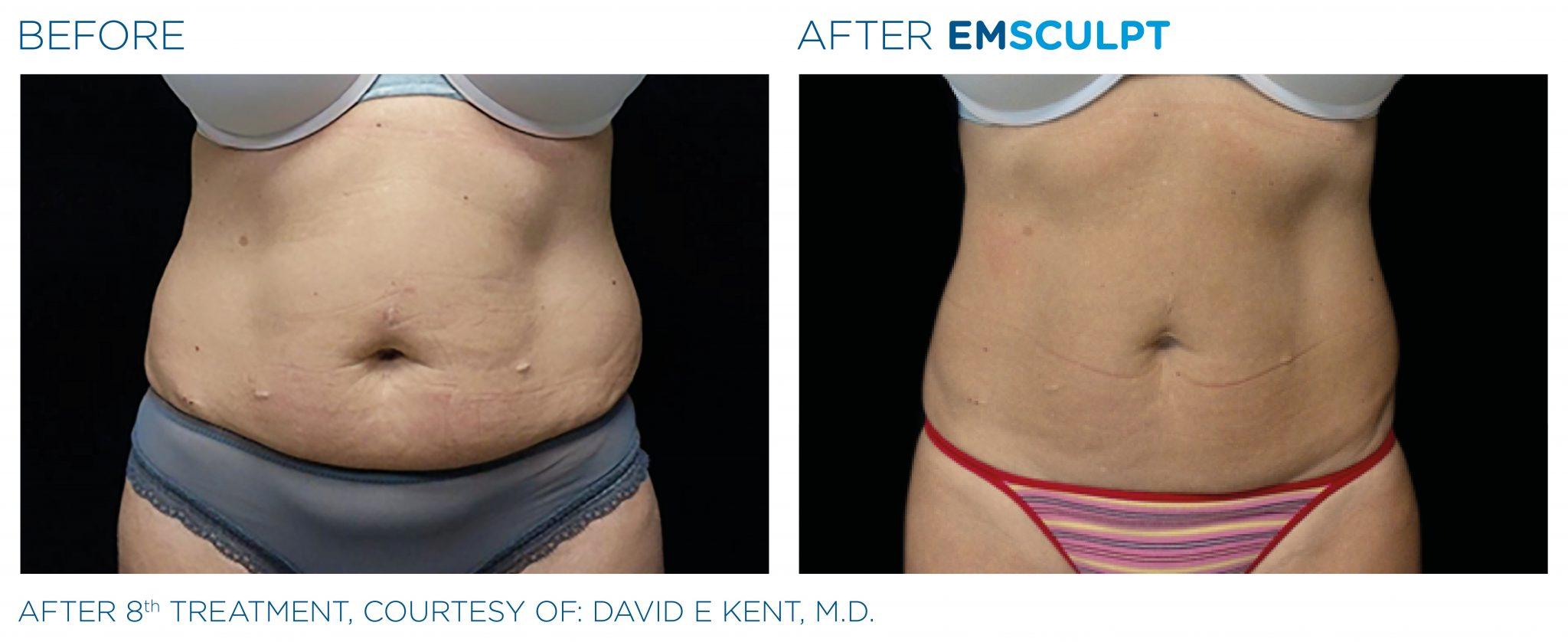 Emsculpt_PIC_Ba-card-female-abdomen-034_EN100