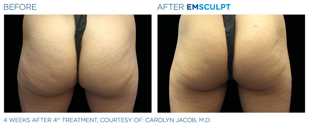 Emsculpt_PIC_Ba-card-female-buttock-005_ENUS100