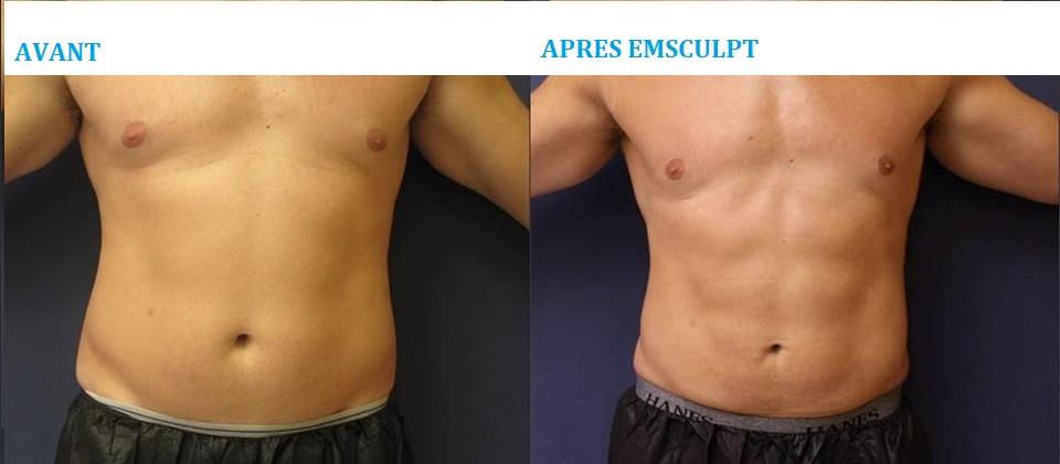 emscuplt-arthestic-paris2