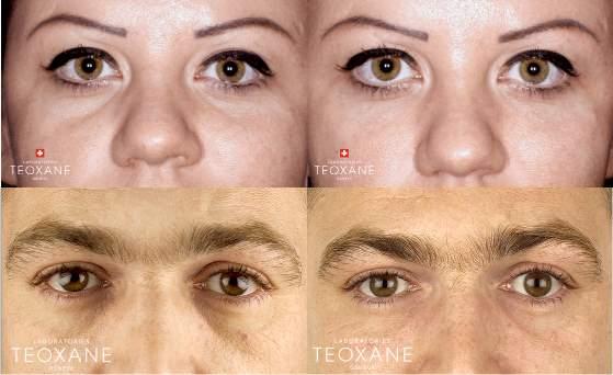 avant-apres-injection-cerne-acide-hyaluronique-arthestic-paris_200403070944