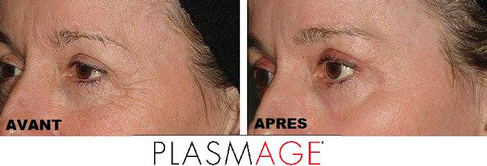 avant-apres-plasmage-paupieres-arthestic-paris