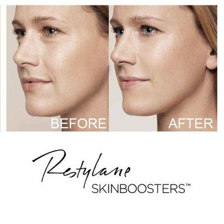 traitement-skinbooster-arthestic-paris