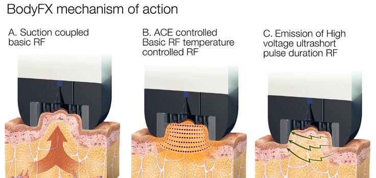 BodyFx-arthestic-paris-cellulite