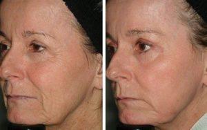 avant-apres-laser-fractionne-peau-arthestic-paris