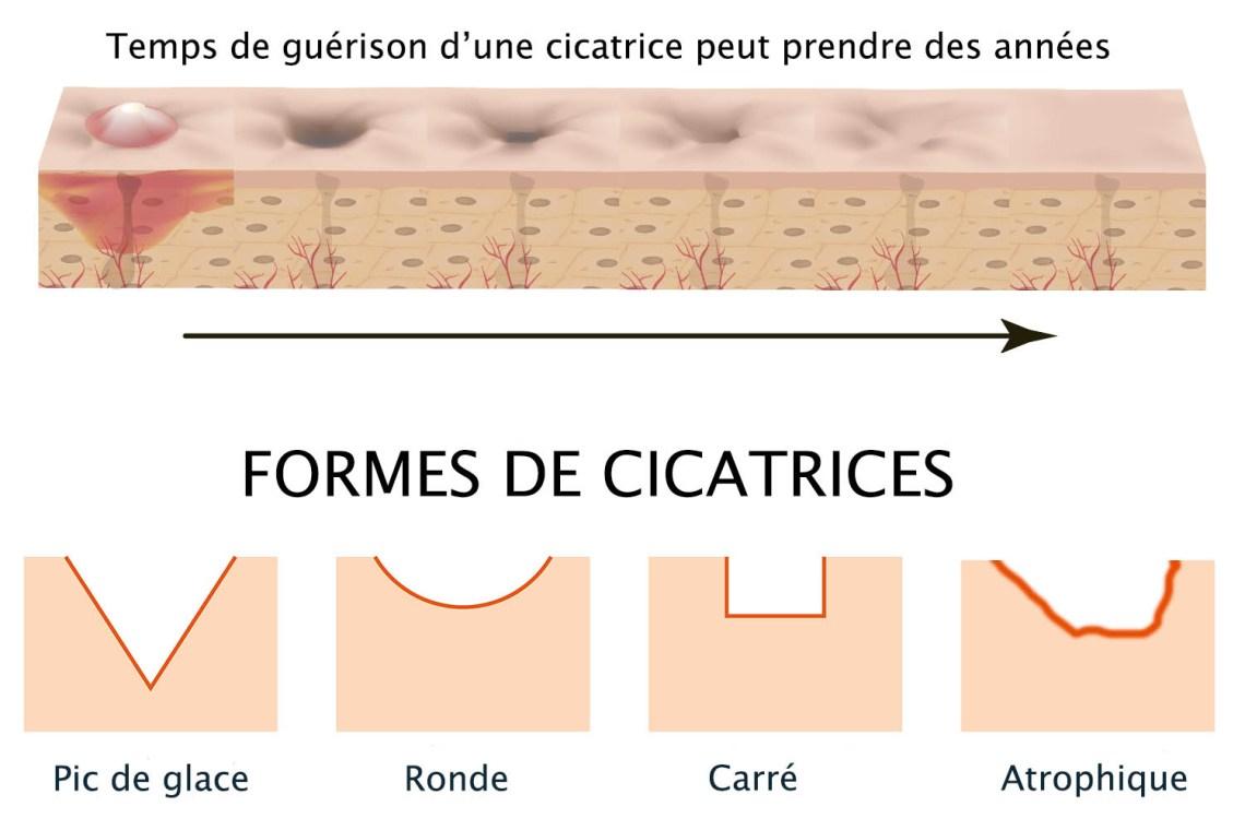 laser-cicatrices-acne-arthestic-paris