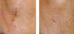 laser-traitement-cicatrice-peau-arthestic-paris
